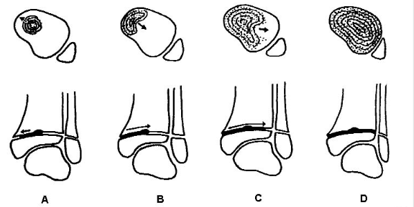 http://upload.orthobullets.com/topic/4029/images/ossification pattern.jpg