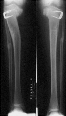 http://upload.orthobullets.com/topic/4051/images/Xray epiphysiodesis- courtesy Miller_moved.png