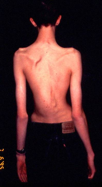 http://upload.orthobullets.com/topic/4089/images/Clinical photo - scoliosis - colorado_moved.jpg
