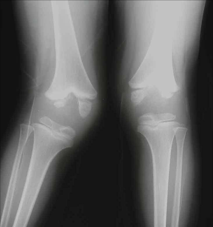 http://upload.orthobullets.com/topic/4095/images/Xray - knee - col_moved.jpg