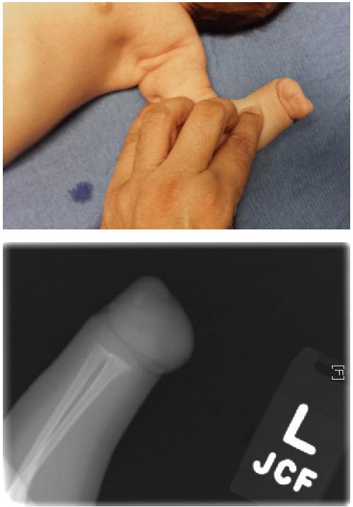 Clinical and radiographic images of congenital amputation due to amniotic band constriction.