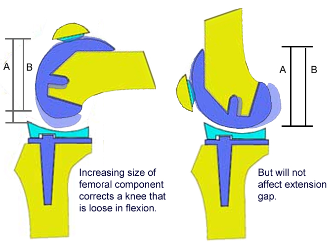 http://upload.orthobullets.com/topic/5016/images/increase size of femoral component but not extension copy.jpg