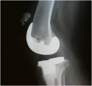 http://upload.orthobullets.com/topic/5023/images/extensor_mechanism_rupture.jpg