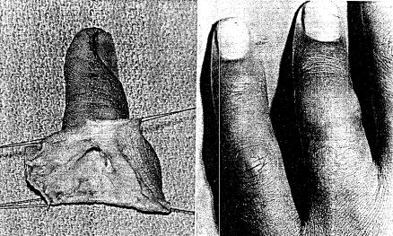 Ring Avulsion Injuries Hand Orthobullets