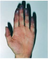 http://upload.orthobullets.com/topic/6098/images/gangrene.jpg