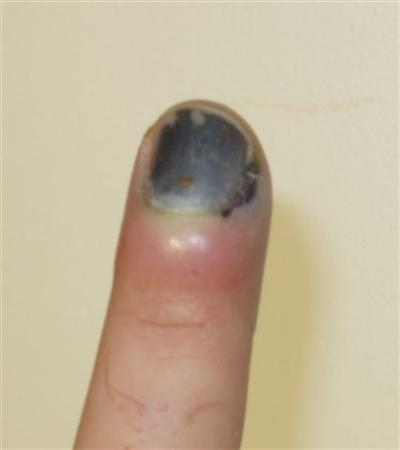 Nail Bed Injury Hand Orthobullets