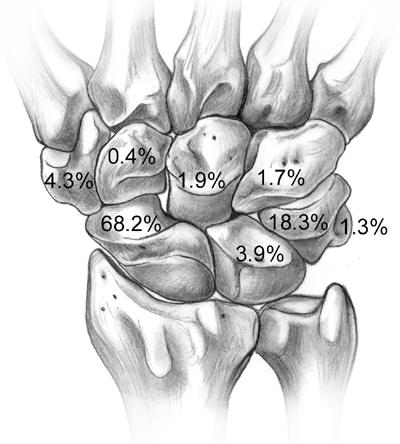 http://upload.orthobullets.com/topic/6112/images/carpal_fractures.jpg
