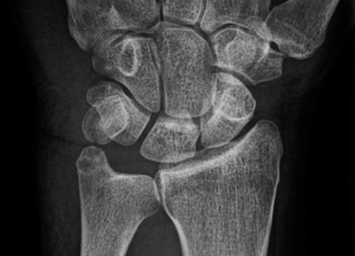 http://upload.orthobullets.com/topic/6112/images/pisiform_fracture.jpg