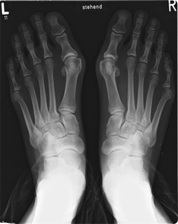 http://upload.orthobullets.com/topic/7008/images/xray.hallux valgus_moved.jpg