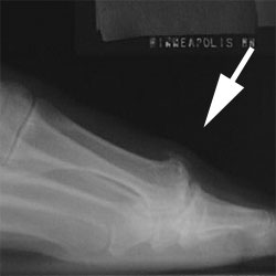 http://upload.orthobullets.com/topic/7009/images/Hallux rigidus_moved.jpg