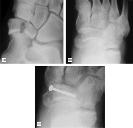 Tarsal Navicular Fractures Foot Ankle Orthobullets