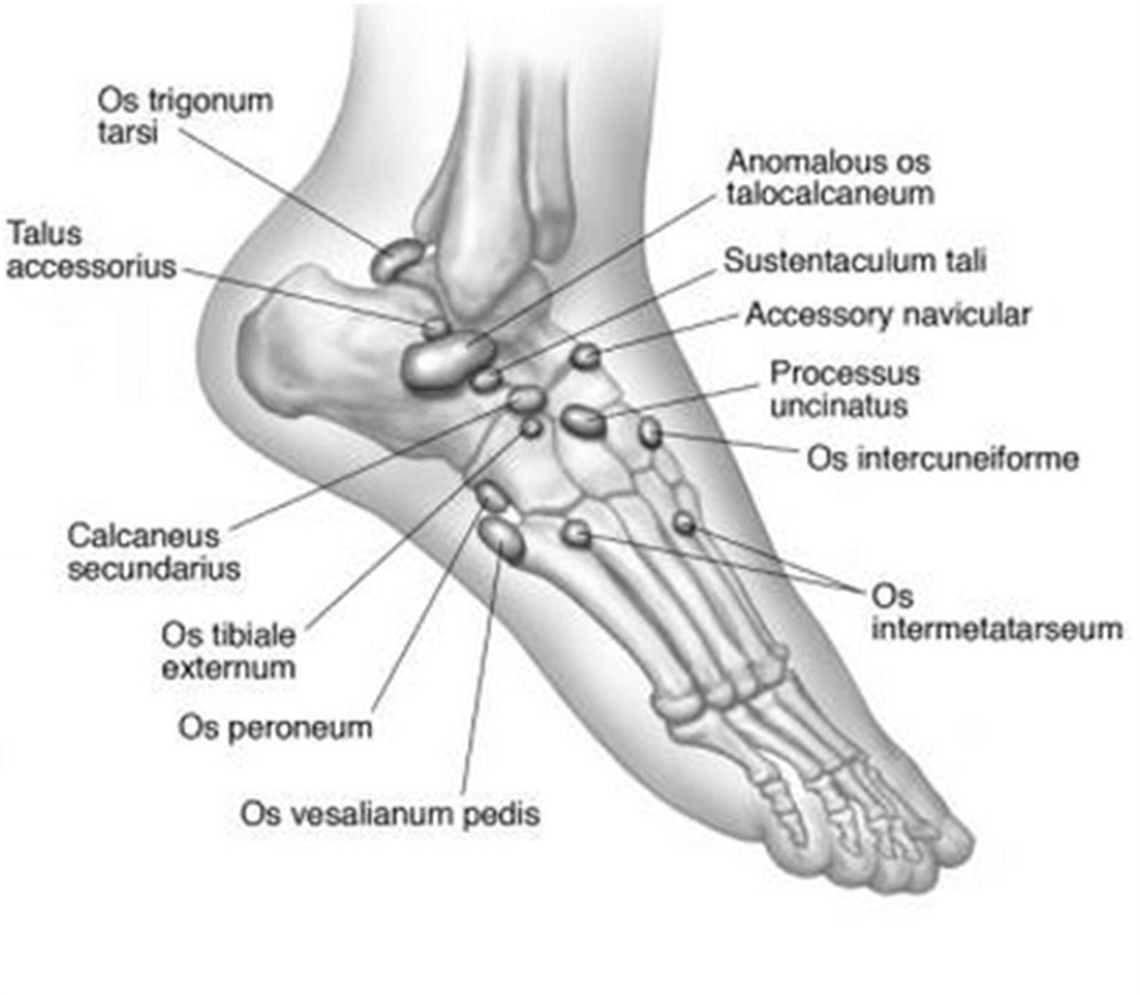Lower extremity os foot ankle orthobullets up to 40 accessory ossicles and multiple sesamoids have been described in the foot and ankle definition pooptronica