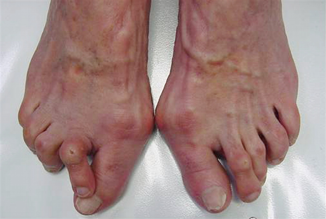 http://upload.orthobullets.com/topic/7053/images/crossover toe.jpg