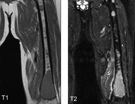 http://upload.orthobullets.com/topic/8024/images/Case A - femur - MRI T1 and T2_moved.jpg