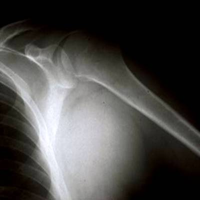 http://upload.orthobullets.com/topic/8052/images/Case B - axilla - xray - parsons_moved.jpg