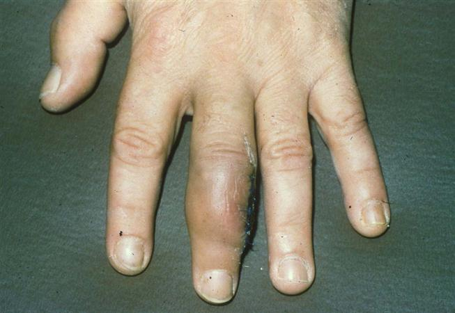 http://upload.orthobullets.com/topic/8076/images/epithelioid sarcoma.jpg