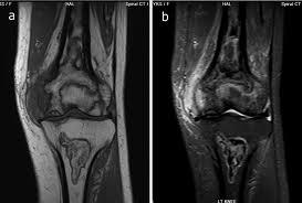 http://upload.orthobullets.com/topic/8078/images/bone infarct mri.jpg