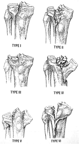 Tibial plateau fractures trauma orthobullets - Tibial plafond fracture classification ...