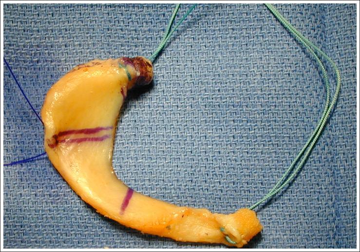Meniscal Injury - Knee & Sports - Orthobullets