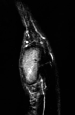 Giant Cell Tumor of Te...