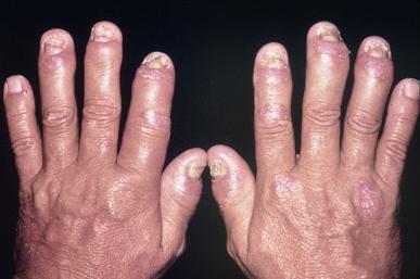 Psoriatic Arthritis Basic Science Orthobullets