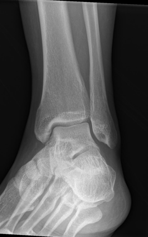 Achilles Tendon Rupture Foot Ankle Orthobullets