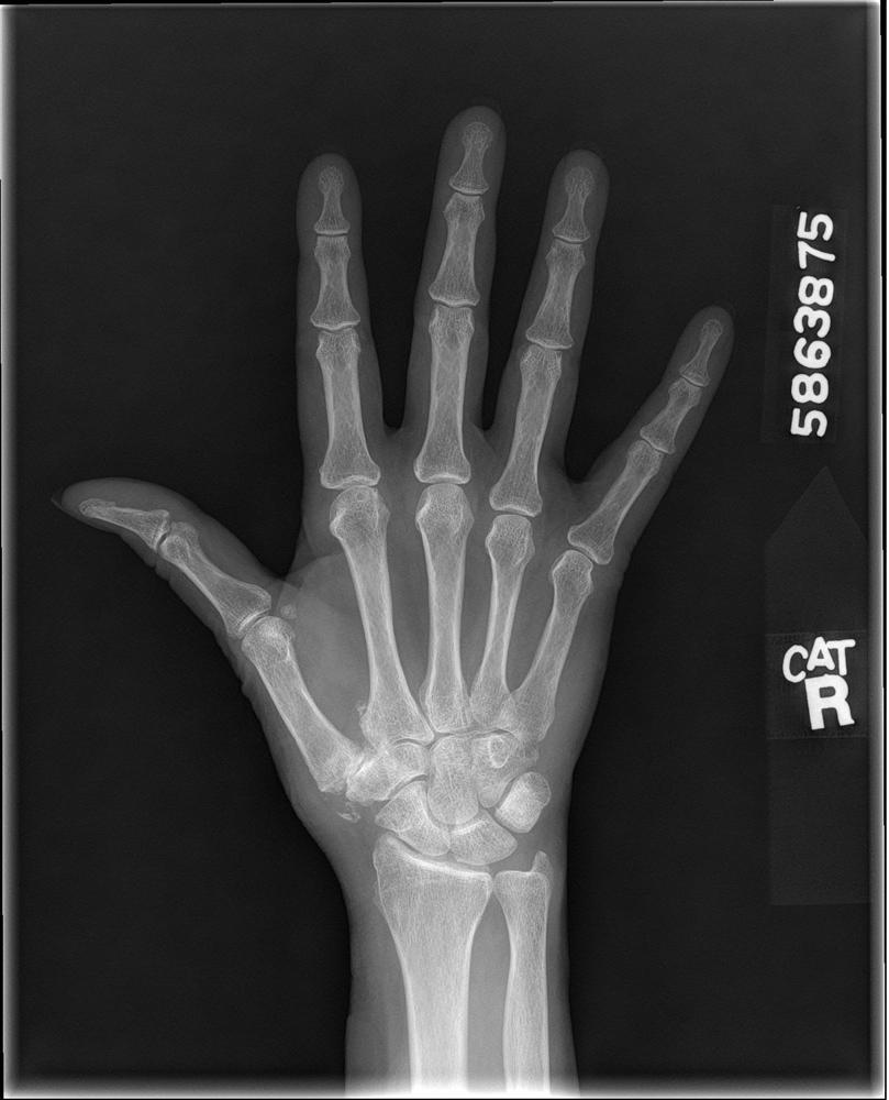 Basilar Thumb Arthritis Hand Orthobullets Saddle Joint Diagram Basal C1185