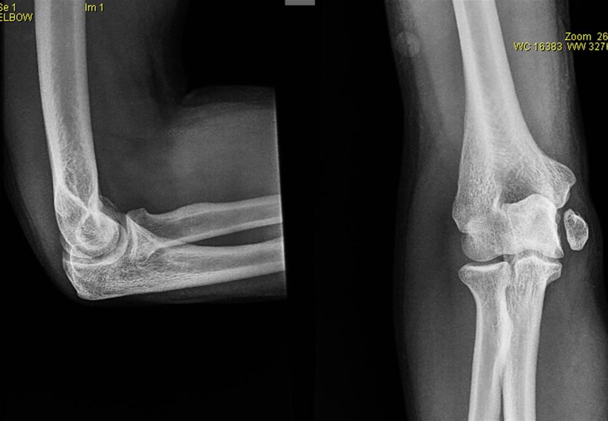 Medial Epicondylar Fractures - Pediatric - Pediatrics - Orthobullets
