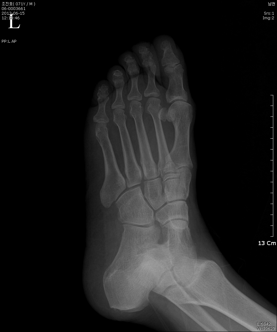 Delightful Lisfranc Injury (C1541) Home Design Ideas