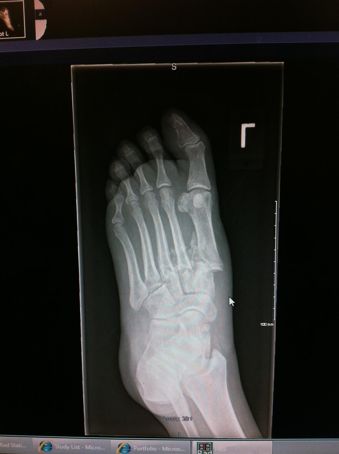 Diabetic Charcot Neuropathy - Foot & Ankle - Orthobullets