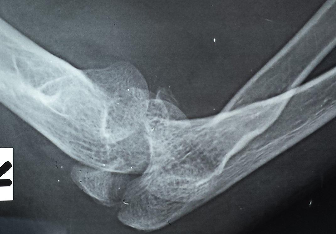 Elbow Dislocation - Trauma - Orthobullets