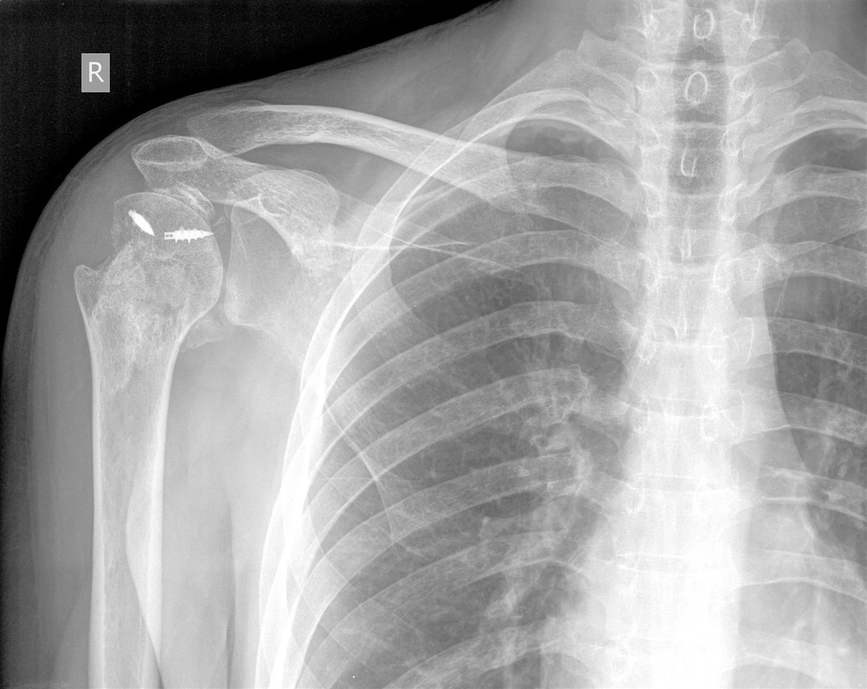 Traumatic Anterior Shoulder Instability (TUBS) - Shoulder & Elbow ...