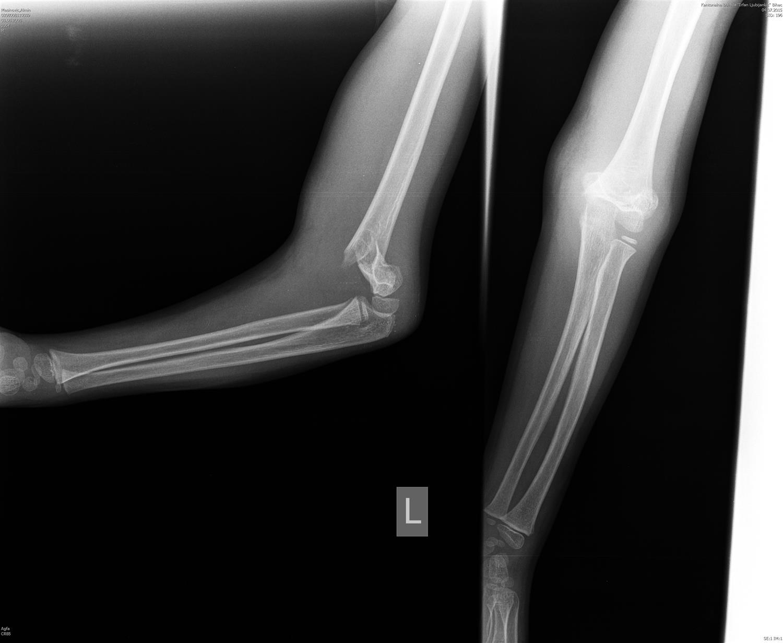 Supracondylar Fracture - Pediatric - Pediatrics - Orthobullets