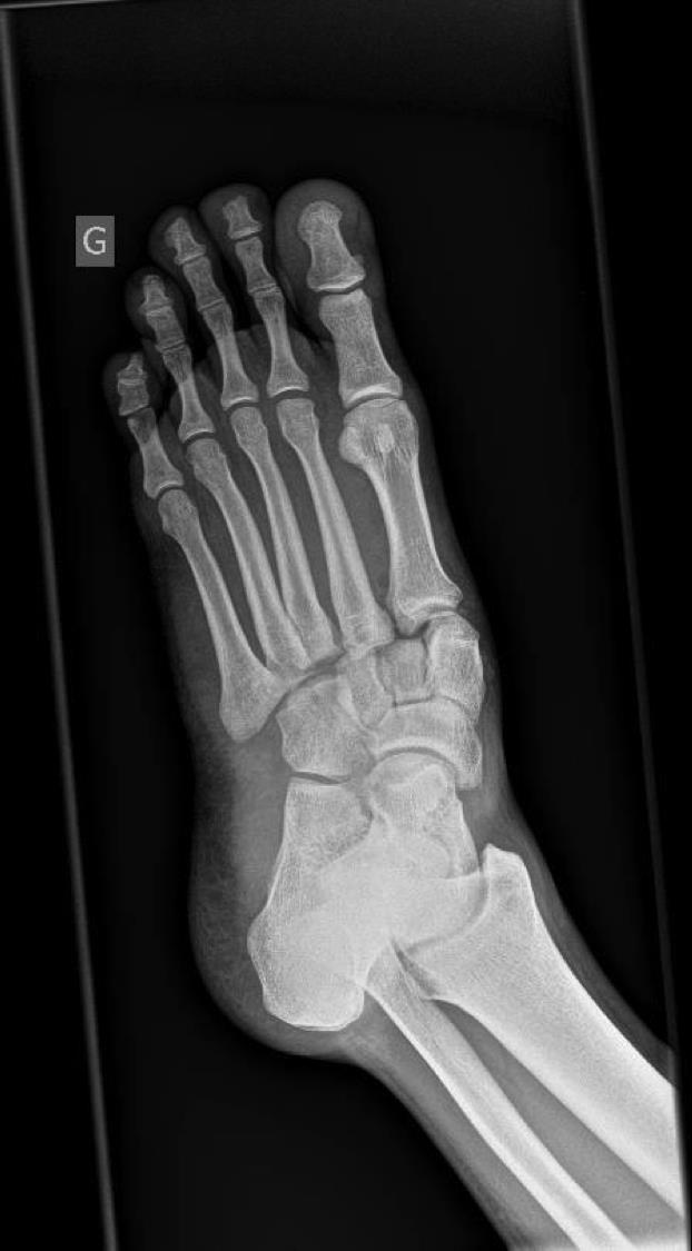 Lisfranc Injury Tarsometatarsal Fracture Dislocation Foot