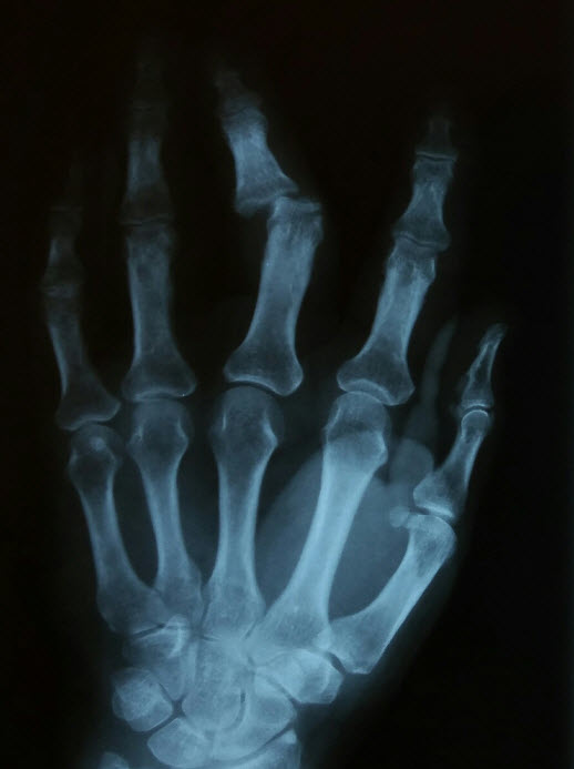 Phalanx Dislocations Hand Orthobullets