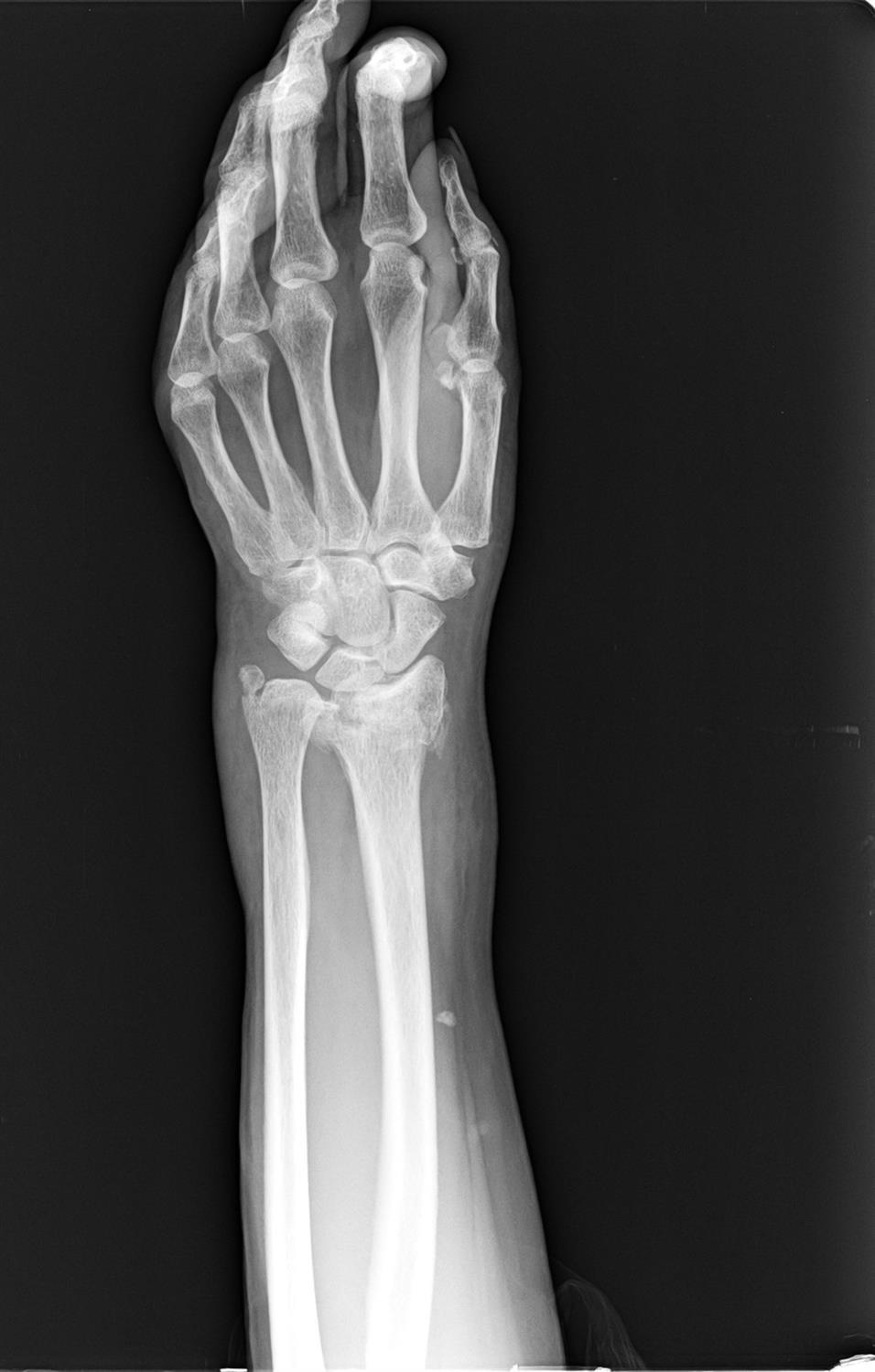 radial fracture