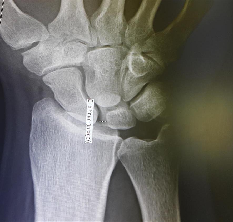 Scapholunate Ligament Injury & DISI - Hand - Orthobullets