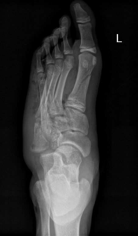 Foot Compartment Syndrome - Trauma - Orthobullets