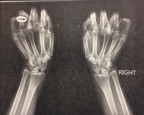 ap clenched fist scapholunate ligament injury & disi hand orthobullets