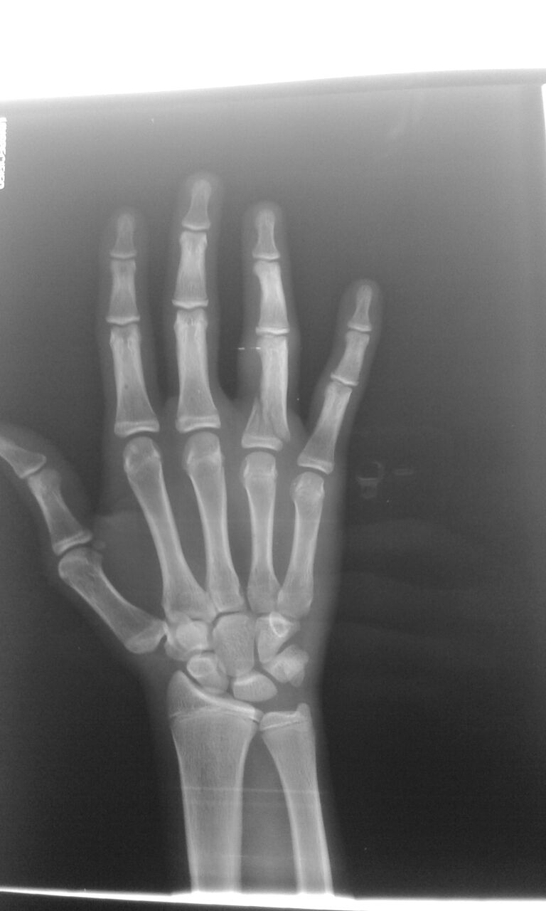 Hairline Fracture On Ring Finger Wiring Diagrams Microcomputertotriac Interface Circuit Diagram Tradeoficcom Phalanx Fractures Hand Orthobullets Rh Com Symptoms X Ray
