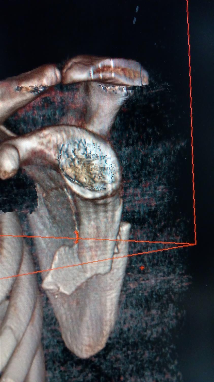 Scapula Fractures Trauma Orthobullets