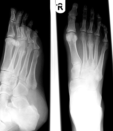 Metatarsal Fractures Foot Ankle Orthobullets