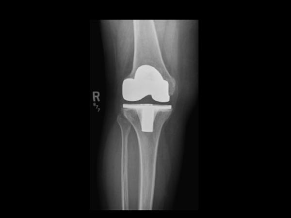 Prosthetic Joint Infection - Recon - Orthobullets