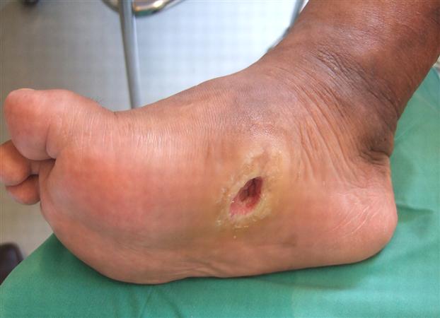 Bottom diabetic foot patient right ulcer foto 297