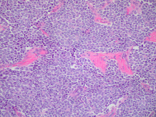 Sarcomas and Cancer Predisposition Syndromes