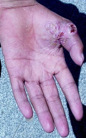 cancer epithelioid sarcoma)