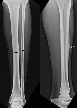 what does a hairline fracture in the ankle feel like