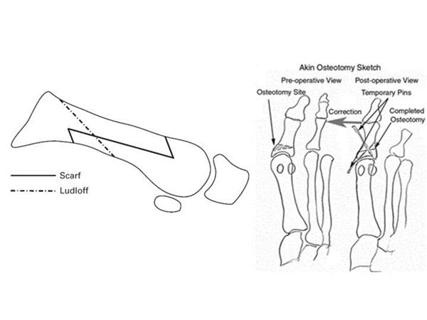 Hallux Valgus Foot Amp Ankle Orthobullets