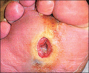 Diabetic Foot Ulcers Foot Amp Ankle Orthobullets