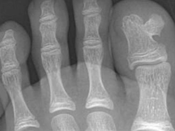 Osteochondroma & Multiple Hereditary Exostosis - Pathology